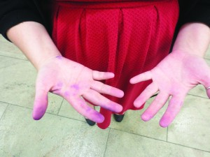 A student's chalk-covered fingers